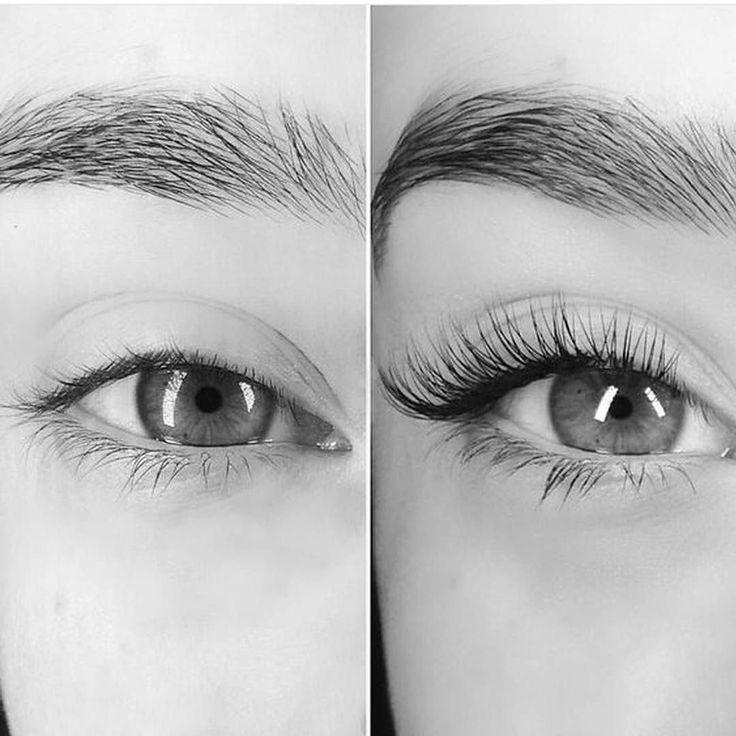 Фото до и после процедуры наращивания